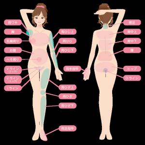 脱毛部分の説明イメージ